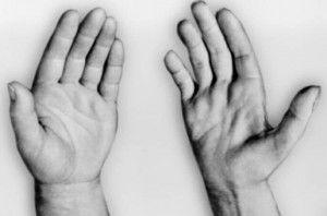 Прогрессирующая мышечная дистрофия