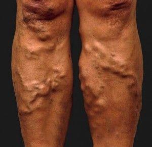Лечение тромбофлебита народными средствами