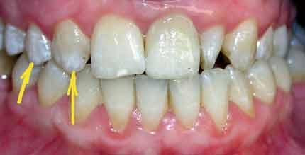 красивые верхние зубы