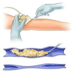Тромбоасс при варикозе ног
